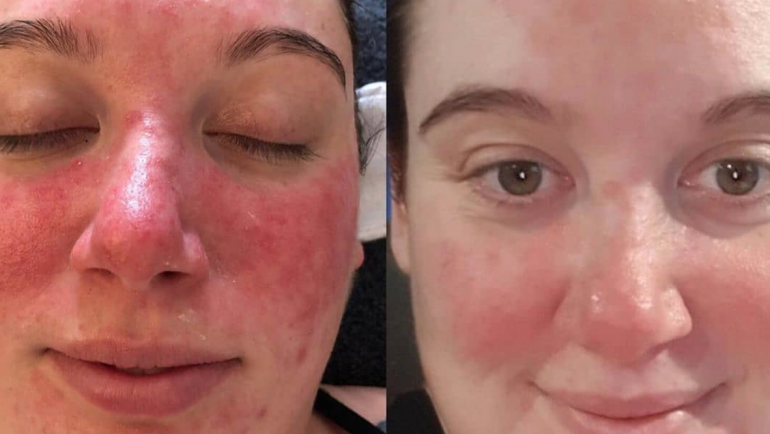 Roccoco Skin Treatments
